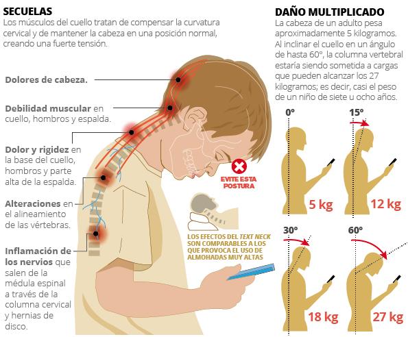 Cuello y espalda son las nuevas víctimas por uso de celulares - La ...
