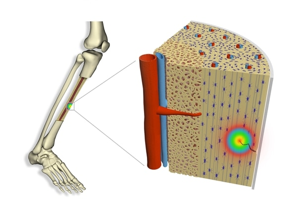 Esta lustración muesta cómo funciona la flexoelectricidad en esas microfracturas que funcionan en nuestros huesos. Imagen: Universidad Autónoma de Barcelona
