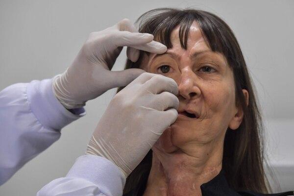 El doctor Rodrigo Salazar-Gamarra coloca una prótesis de ingeniería digital en Denise Vicentin, una mujer que perdió su ojo derecho y parte de su mandíbula por cáncer, en Sao Paulo, Brasil. (Nelson ALMEIDA / AFP)
