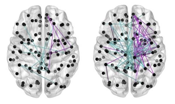 La imagen de la izquierda muestra las conexiones entre las células cerebrales en prematuros alimentados con poca leche materna, y la imagen de la derecha evidencia las conexiones cerebrales en prematuros que recibieron leche materna en más de las tres cuartas partes de su alimentación. Imagen: Universidad de Edimburgo