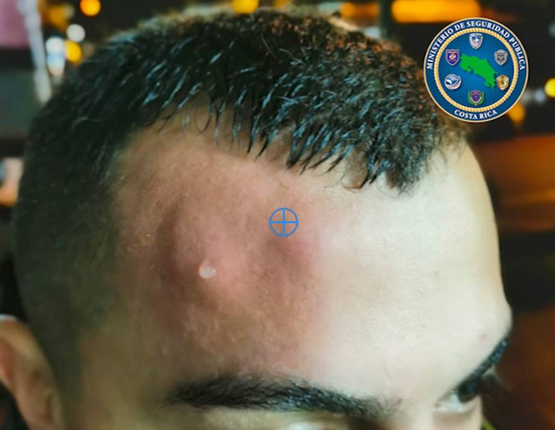 En León XIII varios policías fueron agredidos el sábado cuando intervenían en una aglomeración con consumo de licor en vías públicas Foto: MSP