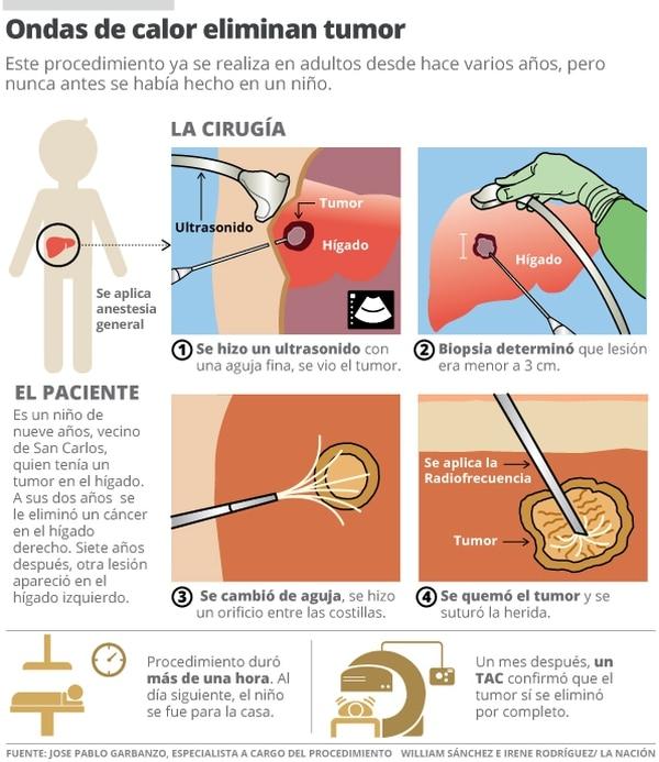 Ondas de calor eliminan tumor