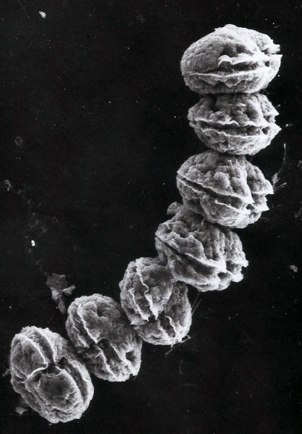 Alexandrium monilatum, dinoflagelado marino (Foto: Maribel Vargas).