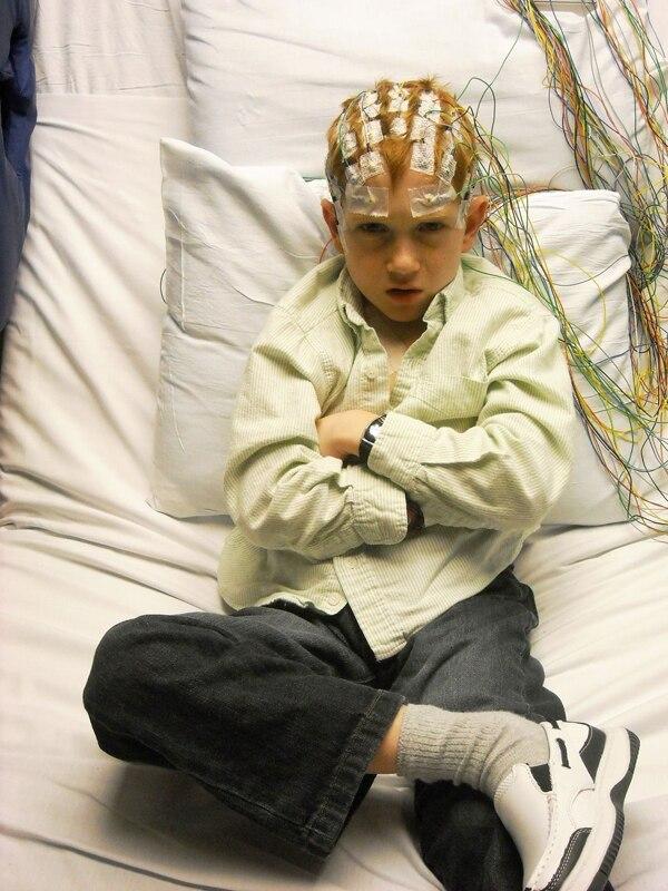 'Viviendo con medio cerebro': Medicina extrema pero efectiva