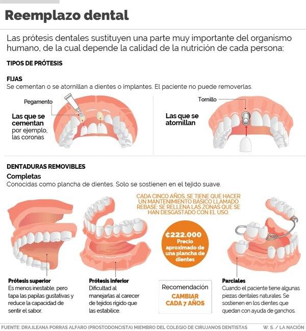 Prótesis dentales tipos