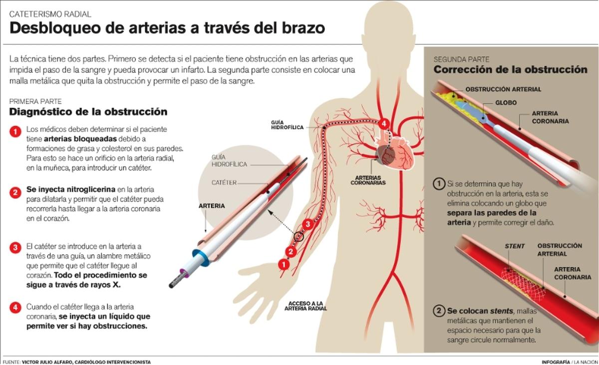 Cirugía ambulatoria desbloquea arterias en solo dos horas - La Nación