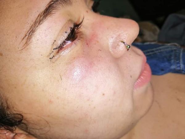 Esta joven, de apellido Quirós, de 20 años, sufrió un ataque sexual en Cartago el 19 de noviembre anterior. Así le quedó el pómulo, por el golpe que le propinó su agresor. Foto: Cortesía de la víctima para LN.