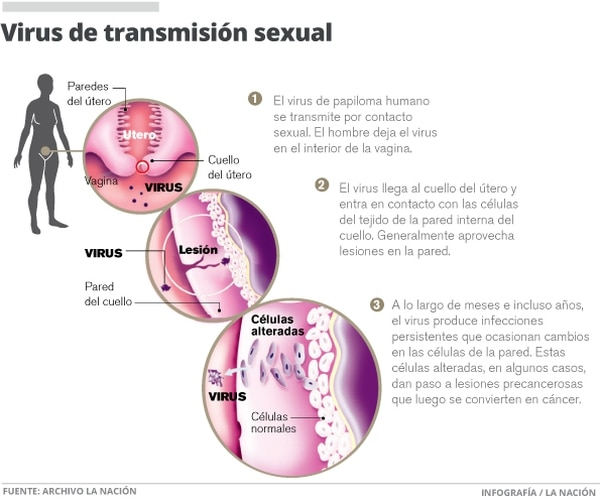 Virus de transmisión sexual