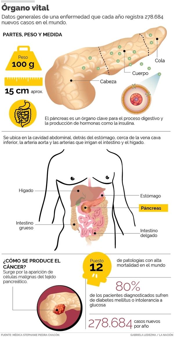El cáncer de páncreas es uno de los más fulminantes.