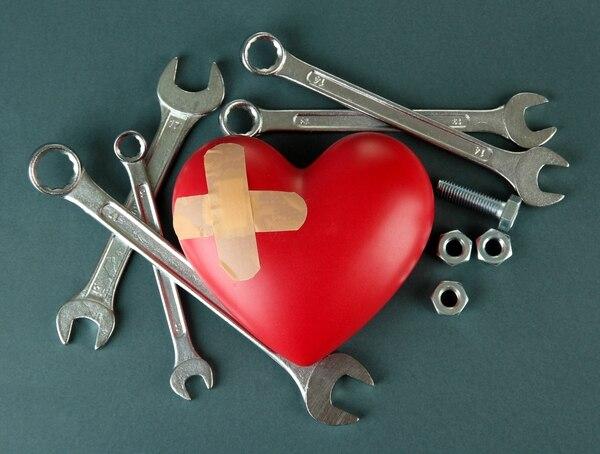 Remendar el corazón por causa de una ruptura amorosa, no es tarea sencilla. Cinco tipos de relación que deben superla.