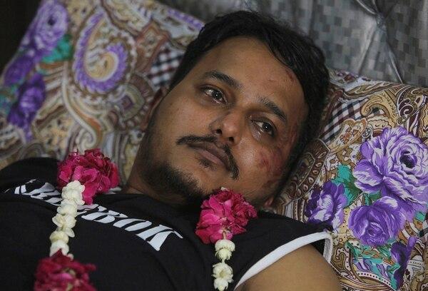 Mohamad Zubair se recupera en su casa en Karachi, Pakistán.