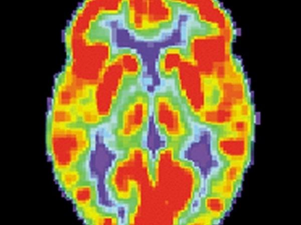 Esta es la imagen de un cerebro normal en resonancia magnética. Fotografía de archivo con fines ilustrativos.