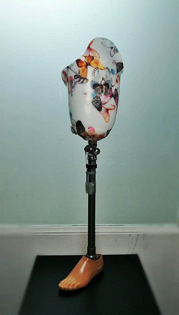 Esta es la prótesis que el taller especializado de la CCSS elaboró para una mujer de 125 kilos, quien perdió su pierna izquierda en un accidente de tránsito. CORTESÍA CCSS