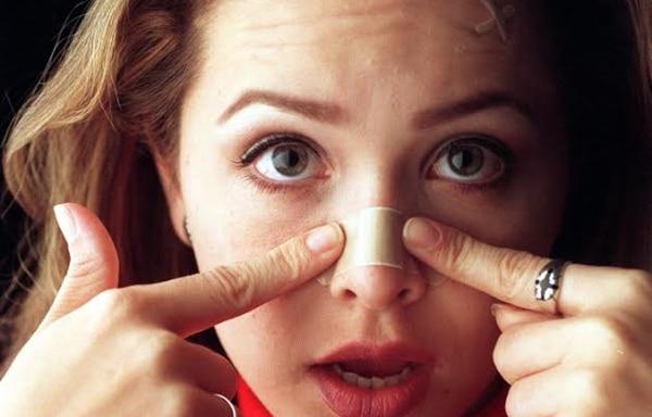 El acné, definitivamente, es una enfermedad que está relacionada con la actividad hormonal y predisposición genética. (Foto con fines ilustrativos)