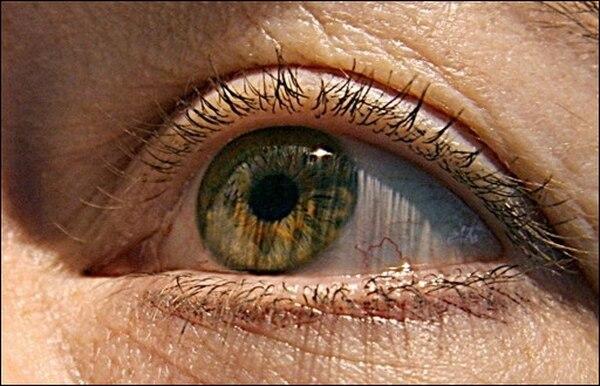(ARCHIVO) Fotografía de abril de 2005. El chileno Raúl Rojas se convirtió en el primer latinoamericano que recobró la vista gracias a un implante dental, a fines de agosto de 2008. Una prótesis se instala en el globo ocular permitiendo que reingrese la luz y devuelve la visión   AFP