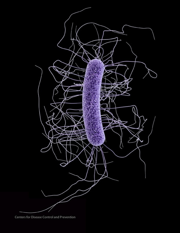 La bacteria Clostridium se asocia a infecciones en hospitales. Causa diarrea, daño intestinal, muerte de tejidos y en ocasiones el fallecimiento del paciente. | IMAGENTOMADA DE LA OFICINA DE PRENSA DEL CDC