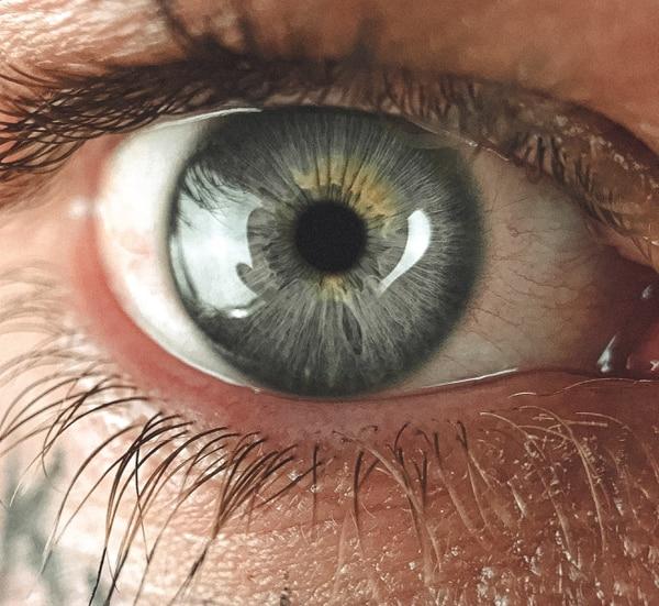 Cómo prevenir las cataratas en los ojos? - La Nación