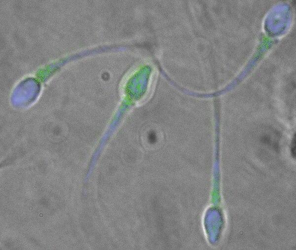 Científicos chinos desarrollaron un método para reproducir la formación de células de esperma que sean viables mediante la técnica in vitro.