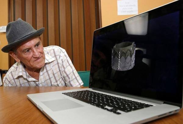 Francisco Segura observó ayer la explicación de la cirugía que le realizaron hace cerca de un mes para colocarle una válvula aórtica. | CARLOS BORBÓN