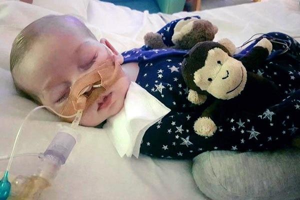 El bebé Charlie Gard está internado en el Great Ormond Street Hospitalen Londres. La familia proveyó la fotografía.