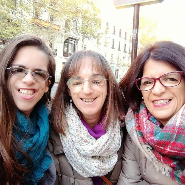 Alina Soto (izquierda) junto a dos mujeres que también nacieron con Treacher Collins. A ellas las conoció en España. Cortesía de Alina Soto