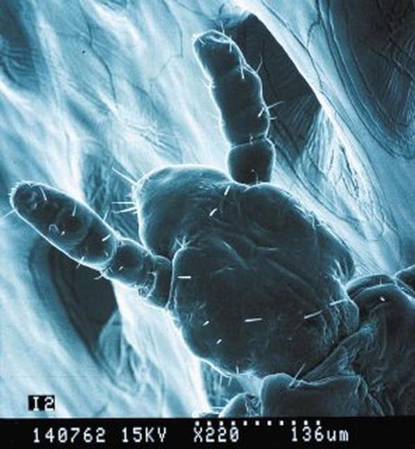 En total, existen 3.400 especies de piojos en el mundo, del orden de Phthiraptera, con tamaños de 0,33 mm a 1,1 cm o más.   CIEMIC/AXEL RETANA PARA LN